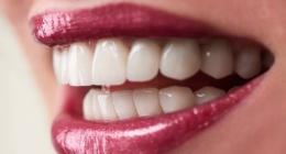 Estetik diş ortodonti