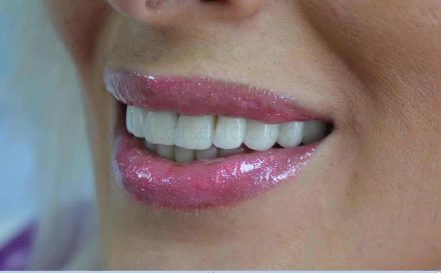 Estetik zirkonyum diş kaplama