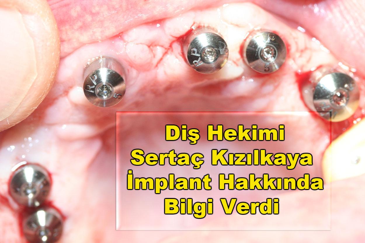 Tek diş implant