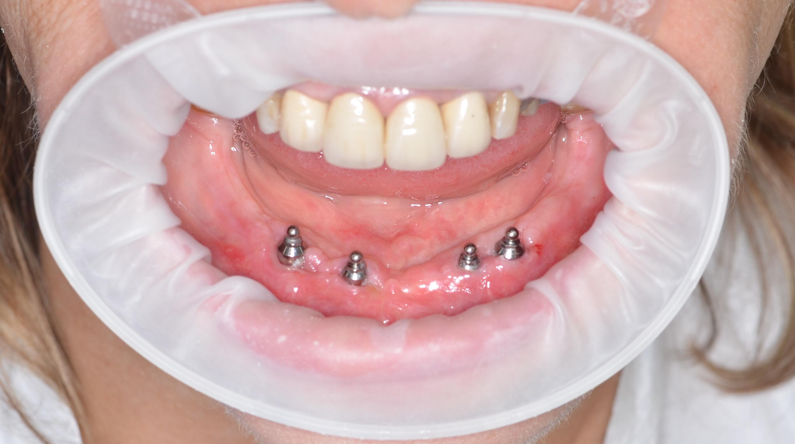 Alt çene 4 implant
