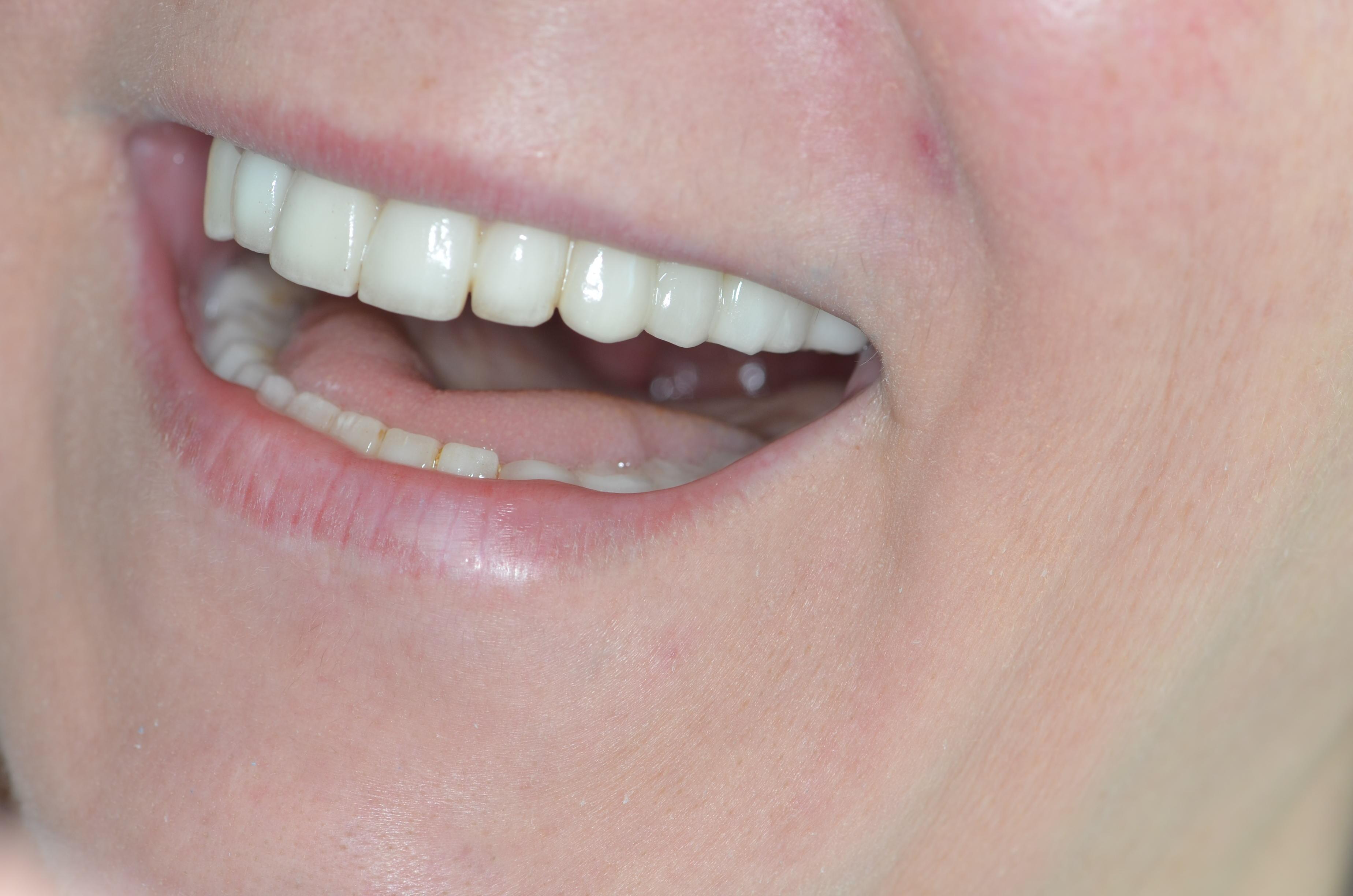estetik zirkonyum diş örnekleri Diş Hekimi Sertaç Kızılkaya
