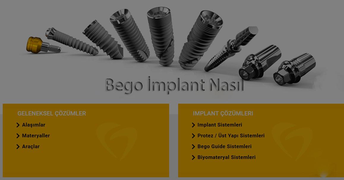 Bego implant