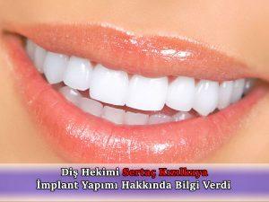 implant diş yapım fiyatı 2019