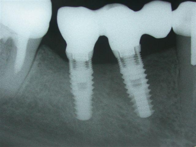 Nucleoss implant