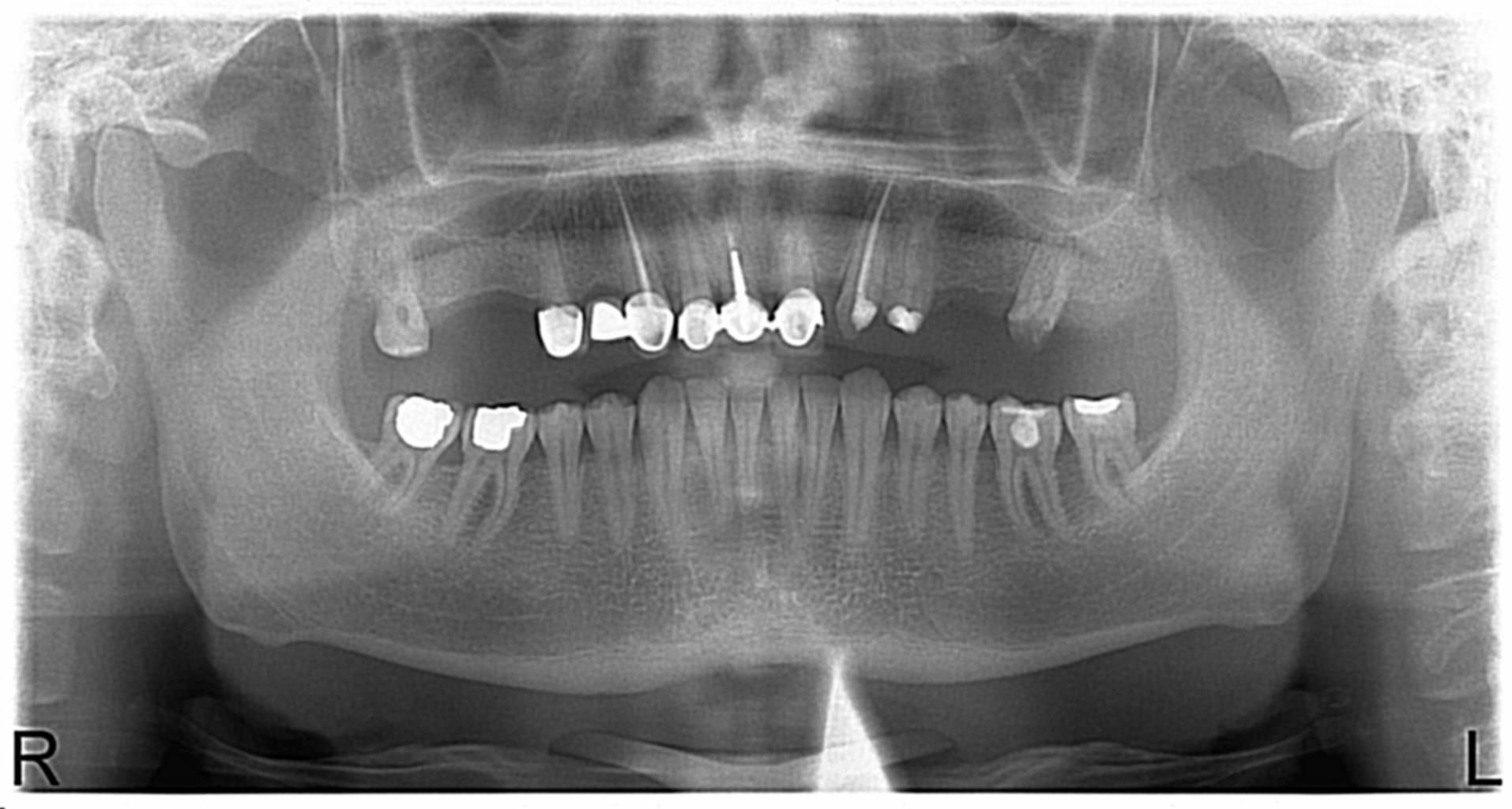 Küçükçekmece Panoramik Diş Röntgeni